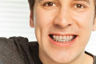 How Traditional Metal Braces Measure Up To The Clear Dental Aligner Braces