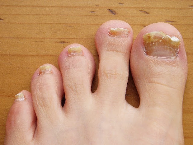 Top 5 Effective Home Remedies To Get Rid Of Toenail Fungus