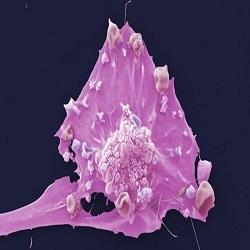 Teste de imunoterapia mostra-se promissor para câncer de mama agressivo