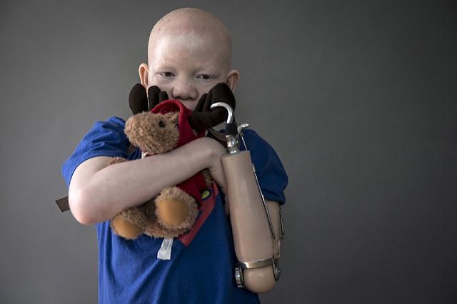 http://p3.publico.pt/actualidade/sociedade/18397/albinismo-amputacao-e-supersticao