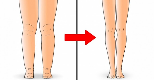 Swelling In Legs Home Remedies