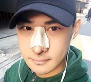 짱이뻐! - Preparing To Be A Model With Korea Plastic Surgery