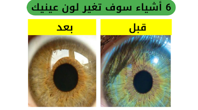 عملية تغيير لون العين بالليزر في الاردن, كم تكلف عملية تغيير لون العين بالليزر, عملية تغيير لون العين في العراق, تغيير لون العين بالليزر في دبي, عملية تغيير لون العين في السعوديه, تغير لون العين بالليزر في تركيا, عملية تغيير لون العين في ايران, ,تغيير لون العين بالليزر في الرياض ,تغيير لون العين بالاكل تغيير لون العين الى الاخضر, طريقة تغيير لون العين بدون عملية, تغيير لون العين بالعقل الباطن, خلطه لتغيير لون العين, تغيير لون العين بالليزر, تكلفة عملية تغيير لون العين في مصر, ,تغير لون العين بالاسترخاء