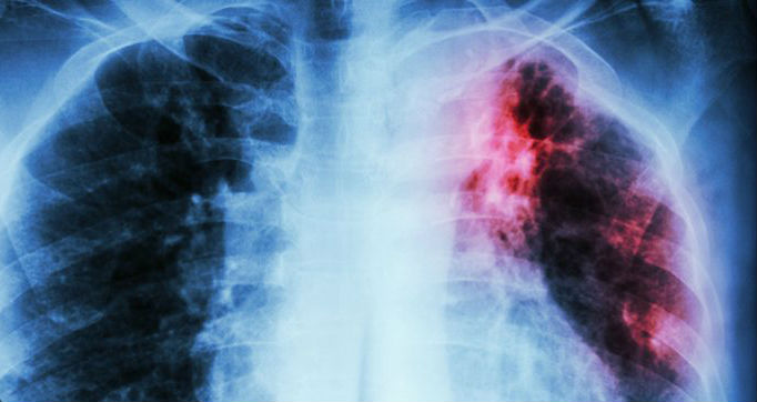 Hasil gambar untuk ilustrasi berhenti merokok