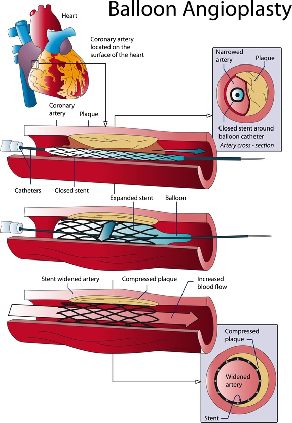 STENT. DILATATION OF THE ARTERY
