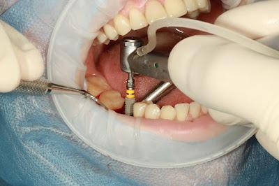 Cât costă un implant dentar și care este prețul corect?