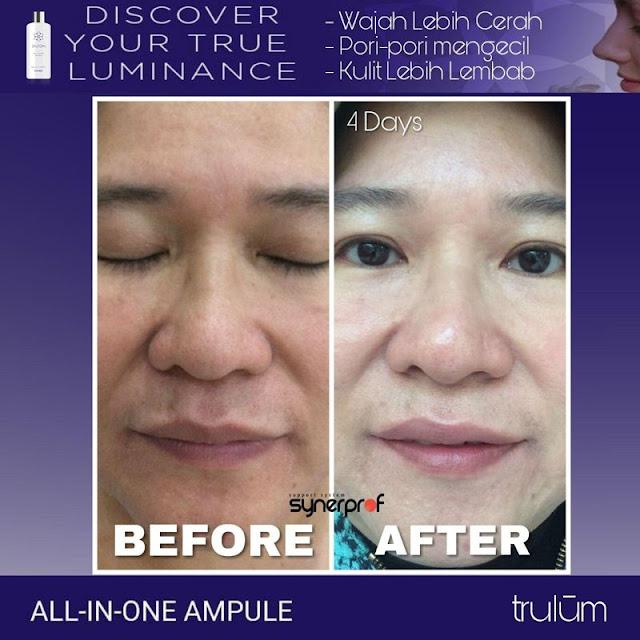 Bebas Bopeng Bekas Jerawat, Flek Hitam Tanpa Harus Laser Atau Ke Tempat Skin Care Di Sahu Halmahera Barat