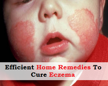 7 Efficient Home Remedies to Cure Eczema