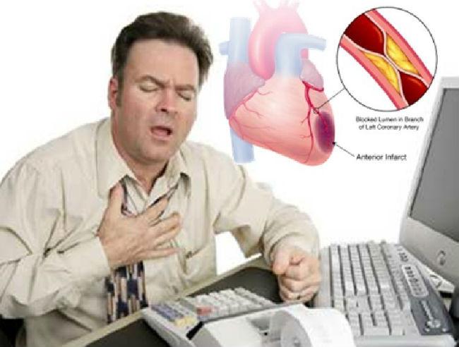 Beberapa Tanda Awal Serangan Sakit Jantung