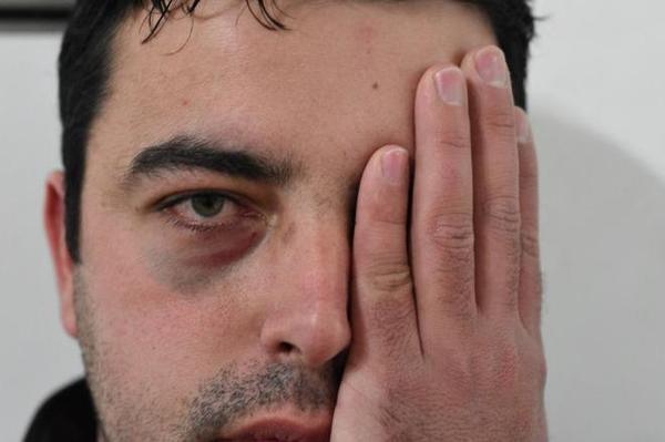 Professor agredido por aluno em Curitibanos