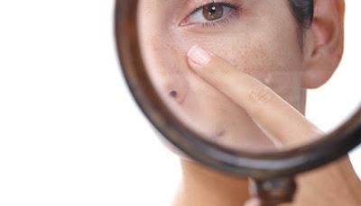 Obat Penghilang Flek Hitam Paling Ampuh Dan Cepat