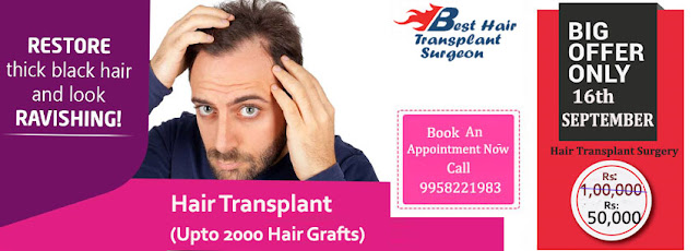 hair transplant surgery in delhi
