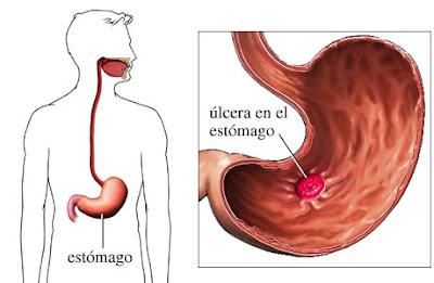 ¿Tienes úlcera péptica?