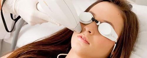 depilacion facial definitiva con laser
