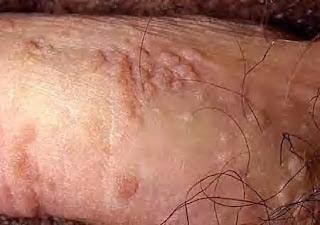 Gambar Salep Jamur Kutil Kelamin Dibatang Penis