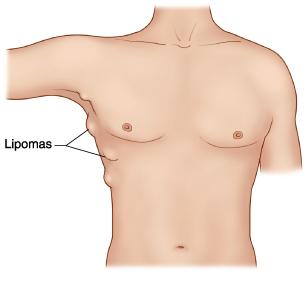 Menghilangkan Benjolan lipoma tanpa operasi