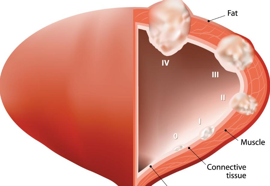 Advanced Bladder Cancer Life Expectancy