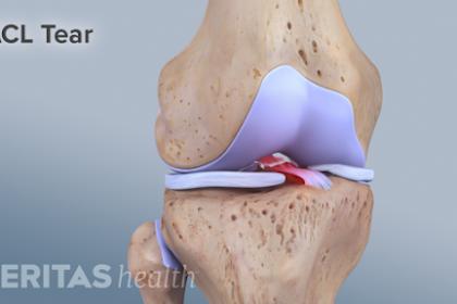 Mengapa Wanita Berisiko Nyeri Lutut Lebih Besar Dari Pria