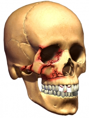 Want Tri pad facial bones