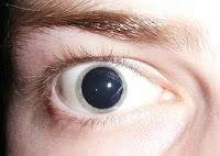 Pupilas abiertas por el LSD