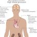 Blood Pressure & Herbal Treatment For High Blood Pressure