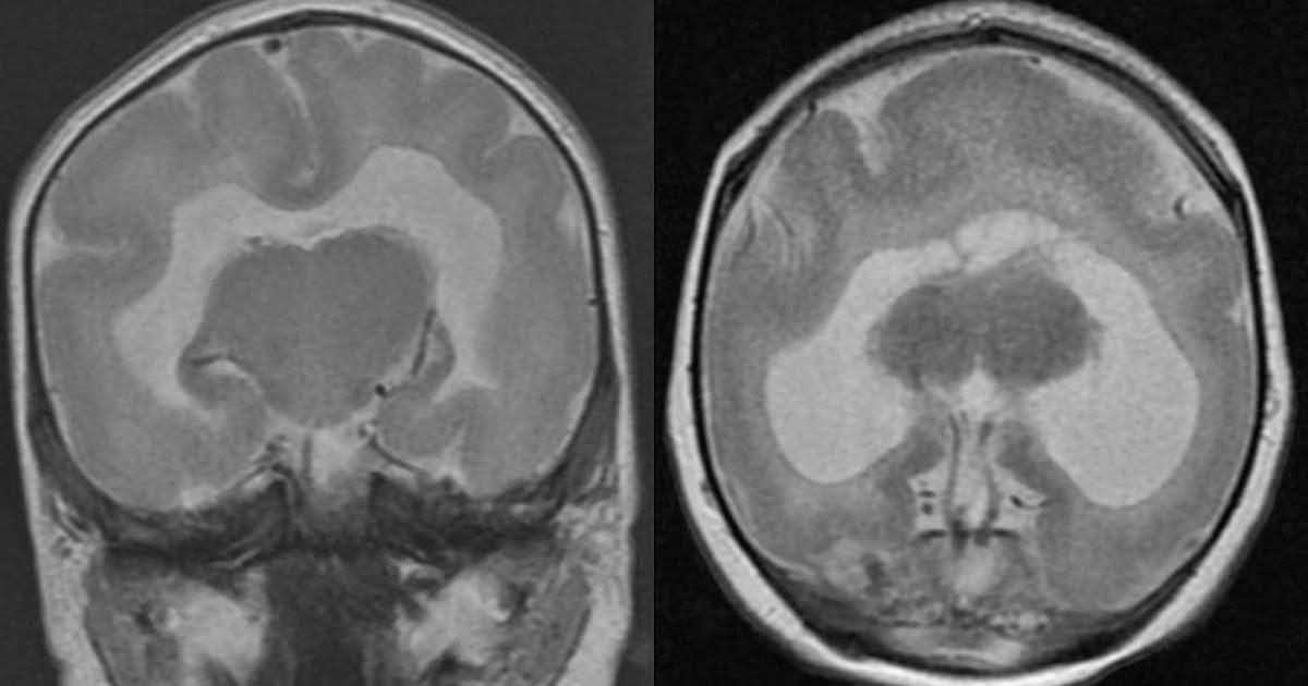 Occipital Lobe Axial Ct