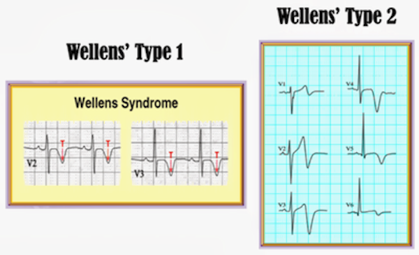 Wellens' Syndrome: Is it on your radar?