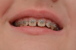 Chi phí niềng chỉnh răng thưa khoảng nhiêu tiền?