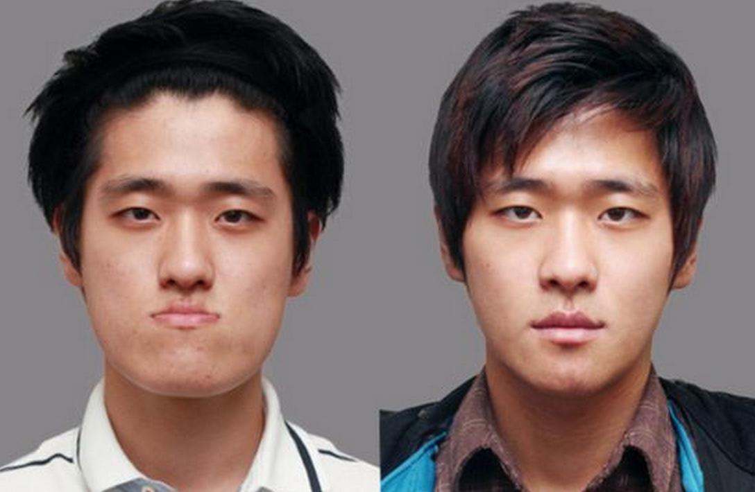 Rhinoplasty NYC Best Nose Surgery New York City
