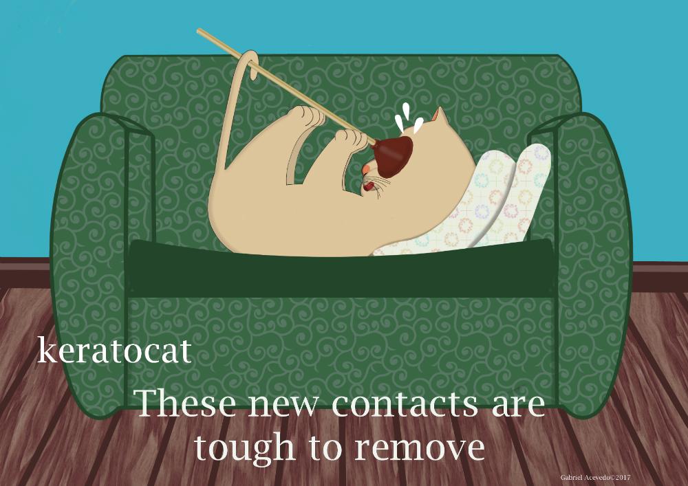 Keratocat, Removing the Contact Lens