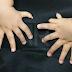 Bayi Dilahirkan Dengan 15 Jari Tangan & 16 Jari Kaki