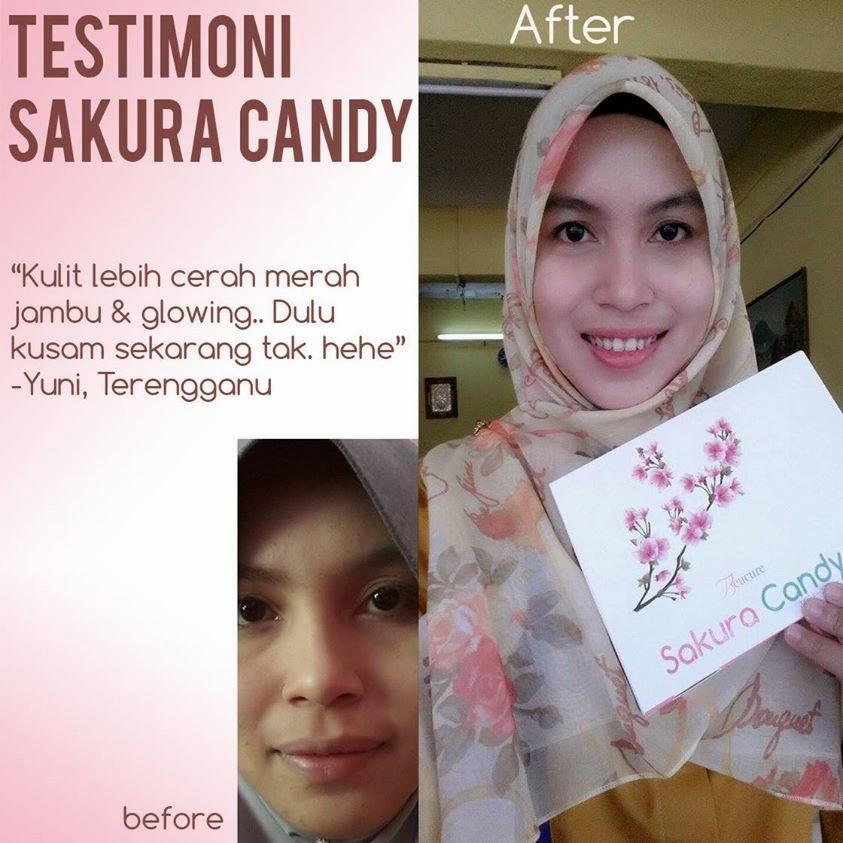 Testimoni pengguna Sakura Candy, Beucure Sakura Candy