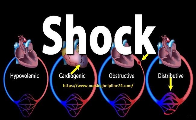 Shock types in medical