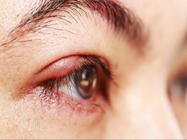 20 Penyebab dan Gejala Mata Bintitan