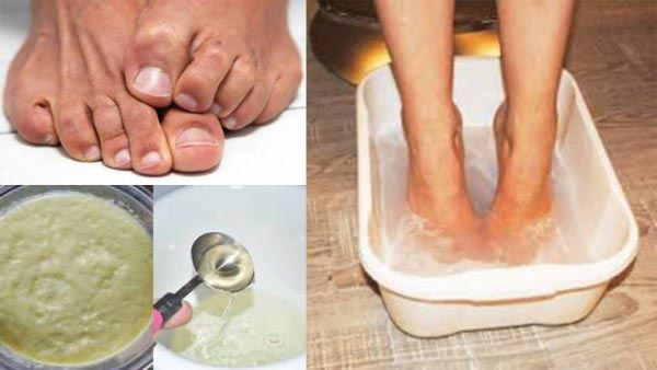 A-Powerful-Recipe-To-Get-Rid-of-Smelly-Feet