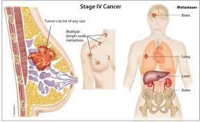Cara Cara Herbal Mengobati Kanker Payudara Secara Alami