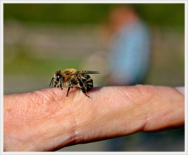 arı ısırması