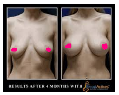 Best breast exercises for perkier more lifted boobs