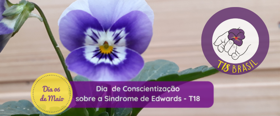 Síndrome de Edwards - T18