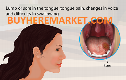 from Throat sex oral caused cancer
