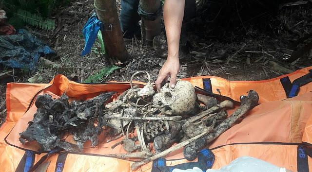 Tengkorak yang ditemukan di Kota Padangsidimpuan.