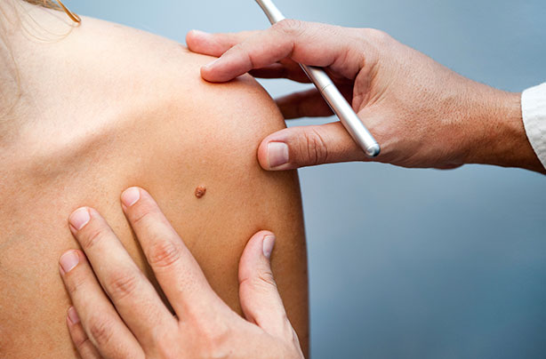 9 Steps To Check For Skin Cancer