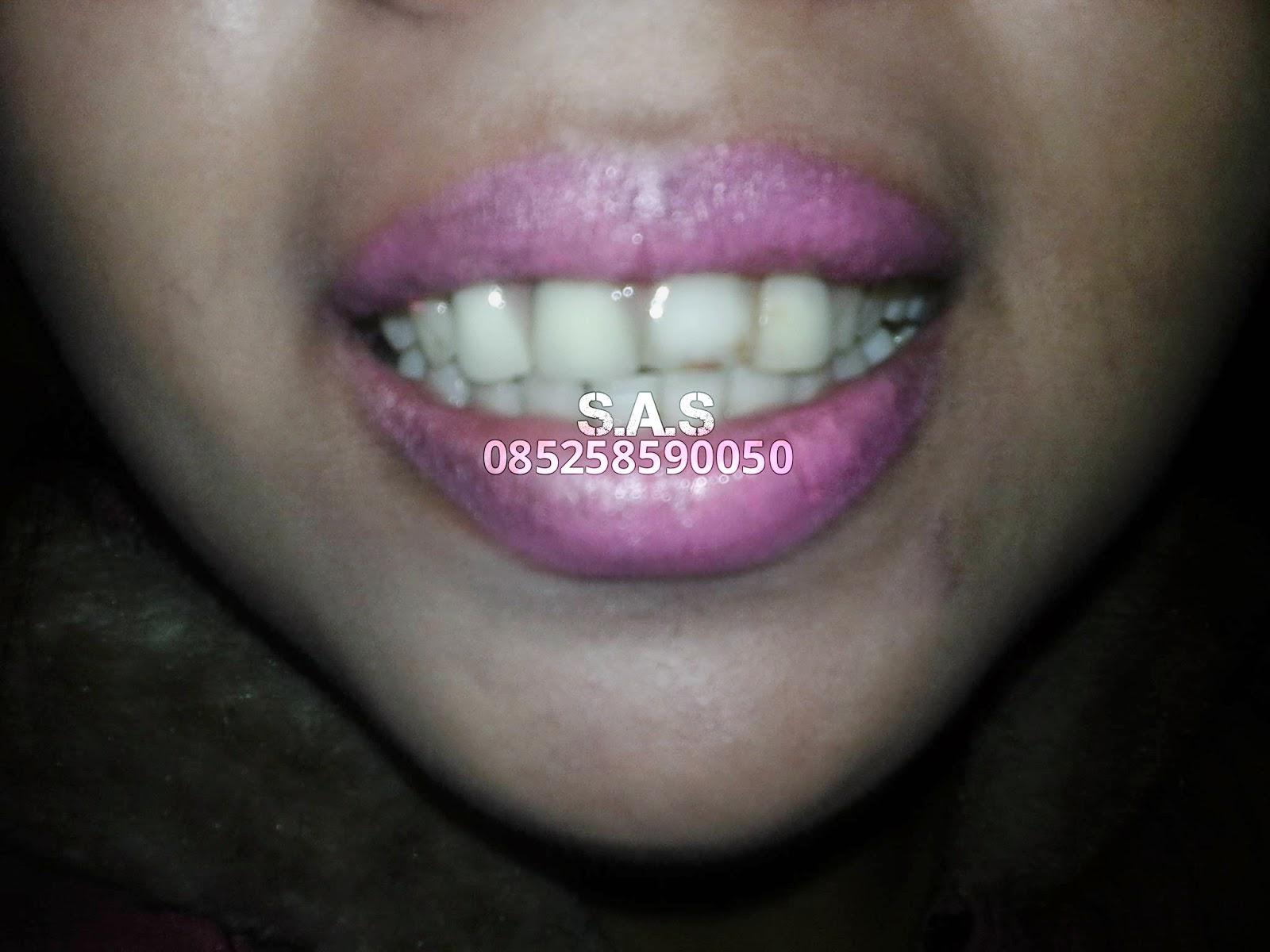 Gambar Ahli Gigi Kota Pati Jateng Jember Jatim Foto Tiruan Estetika ... 69a354efa7