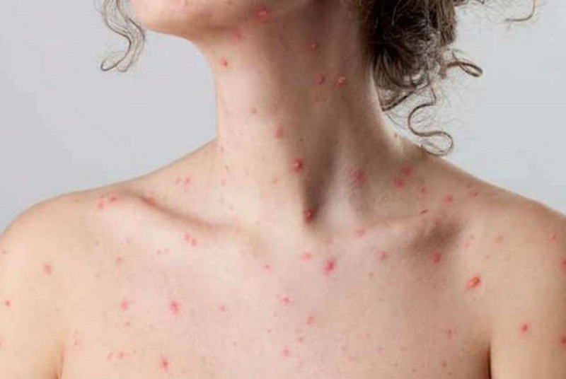 What to Eat and Avoid During Chicken Pox
