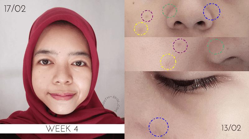 hasil-week-4-avoskin-miraculous-refining-serum