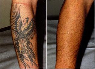 Tatuoinnin Poisto