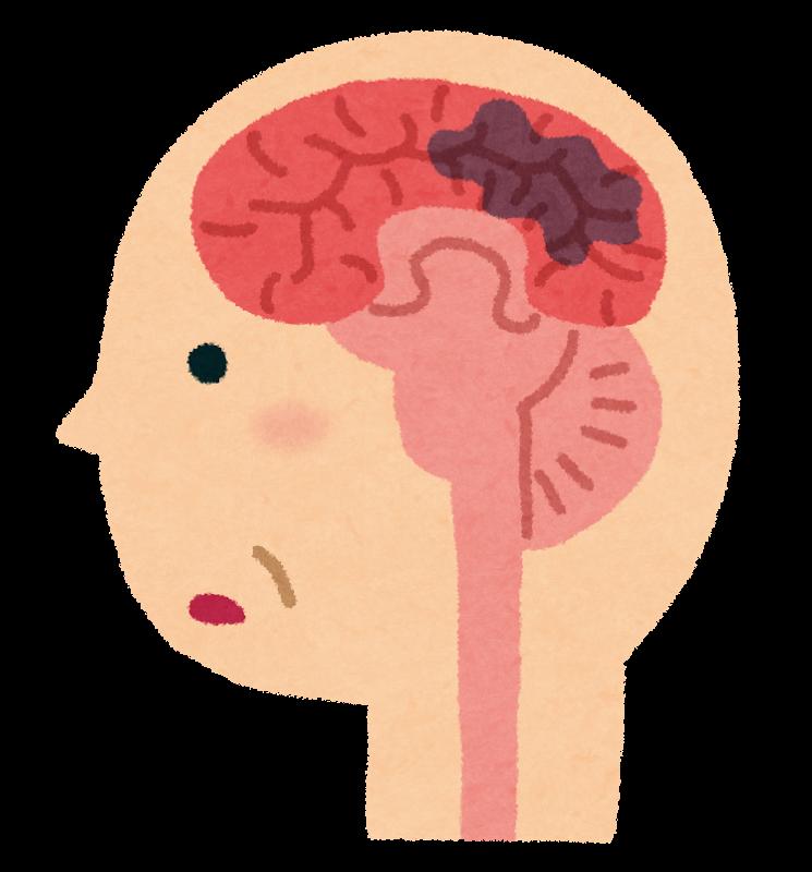 図:脳内出血で認知障害