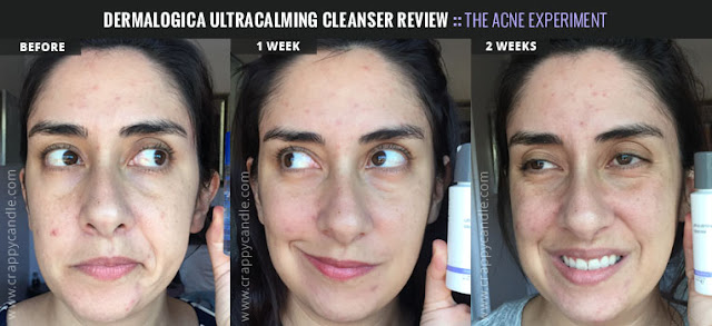 Dermalogica Ultracalming Cleanser Before & After :: Crappy Candle