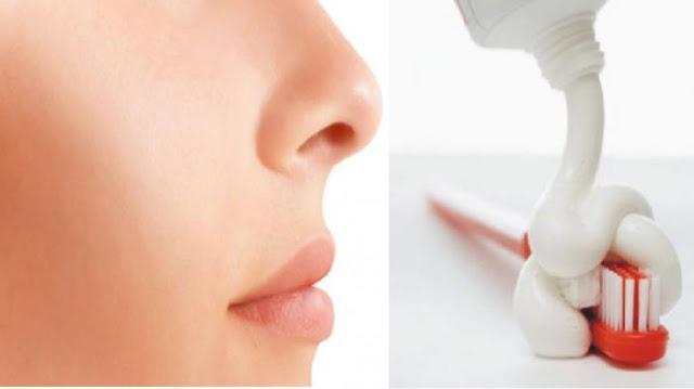 pasta gigi untuk komedo pada wajah