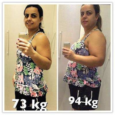Sueli, paciente do Dr. Gabriel Cairo Nunes, mostra o resultado do seu antes de depois do balão intragástrico, em que perdeu 22 quilos em 6 meses.